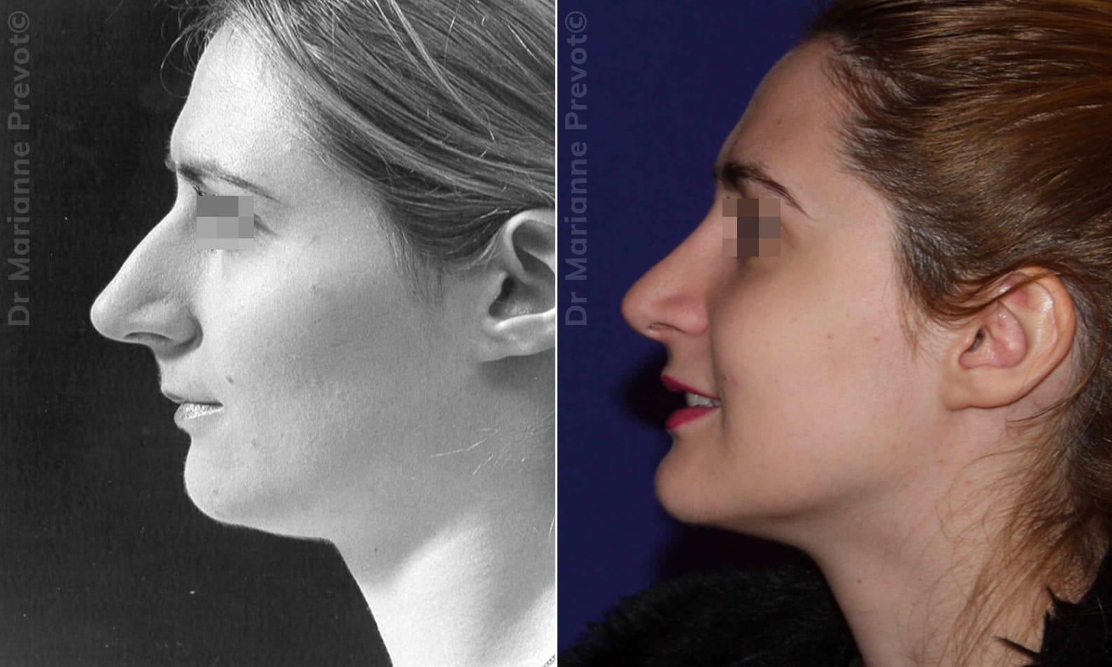 Rhinoplastie à Genève - Dr Prevot, Chirurgie Esthétique ...